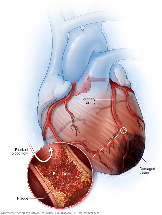 Illustration showing blocked artery and injured tissue in a heart attack