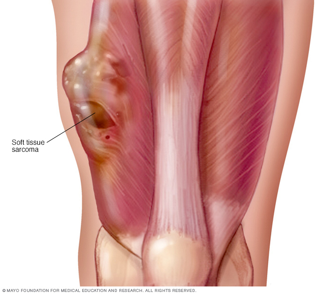 Tumor in thigh muscle