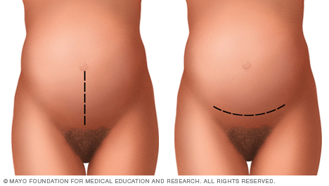 Abdominal incisions used during C-sections