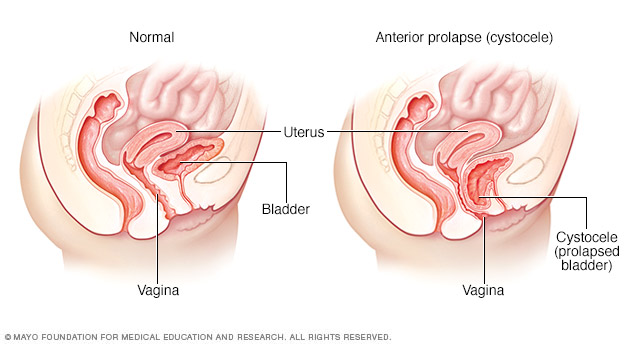 Normal bladder position and cystocele