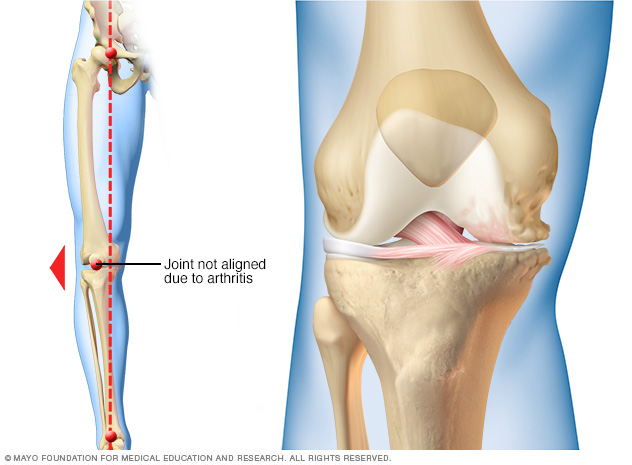 How arthritis can affect just one side of the knee