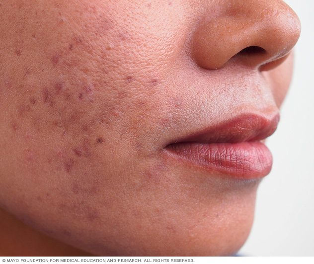 Common acne