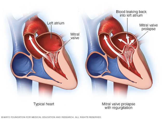 Heart showing mitral valve prolapse and regurgitation