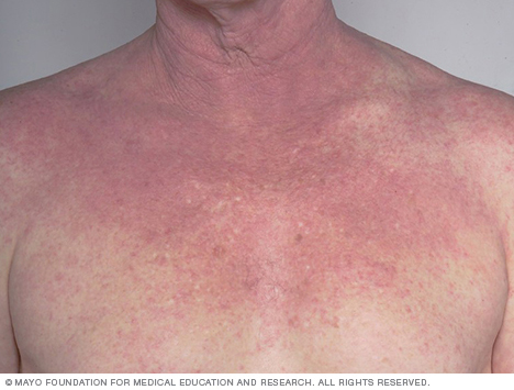 Atopic dermatitis on the chest
