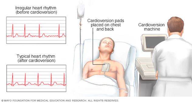 Person undergoing cardioversion