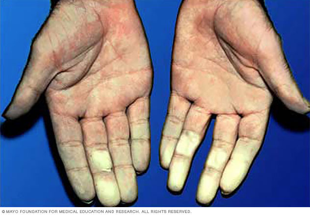 Hands affected by Raynaud's disease