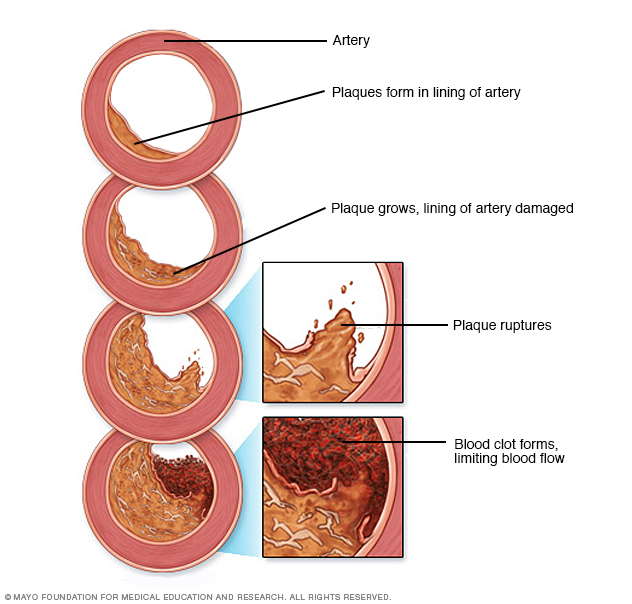 Development of atherosclerosis