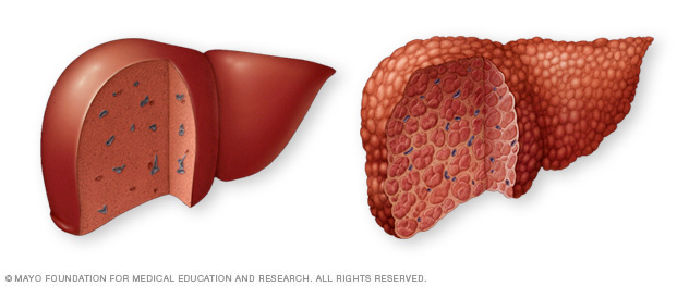 Normal liver and liver cirrhosis