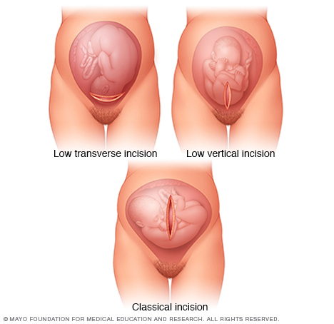 Uterine incisions used during C-sections