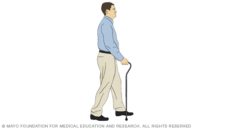 A person taking a step with a cane
