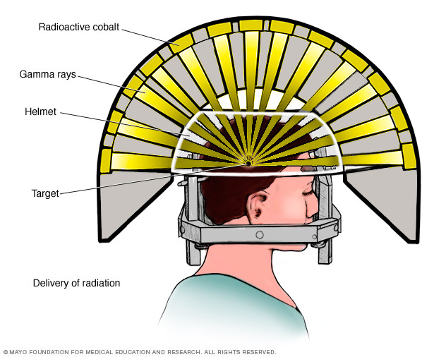 The headpiece and gamma ray delivery
