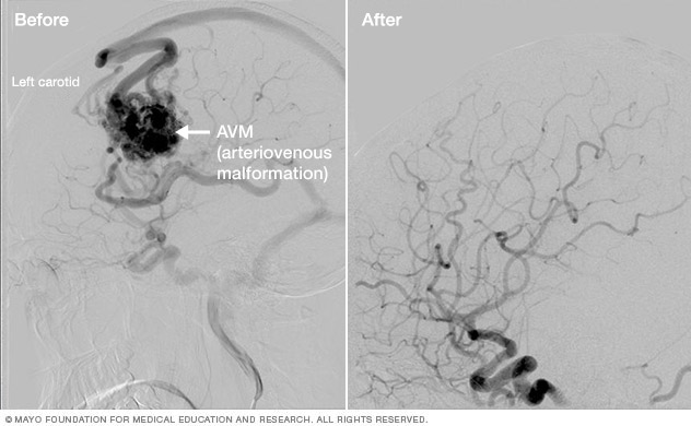 Brain arteriovenous malformation treatment results