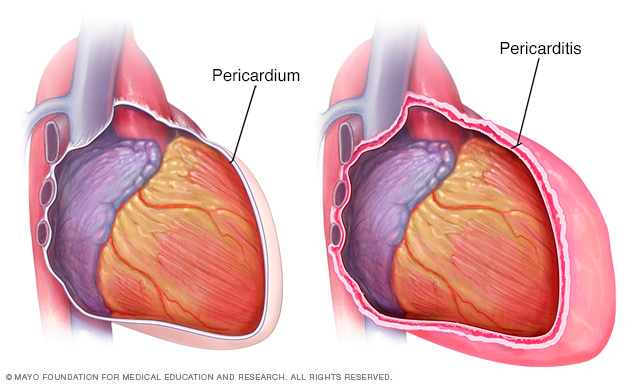 A heart with pericarditis and a normal heart