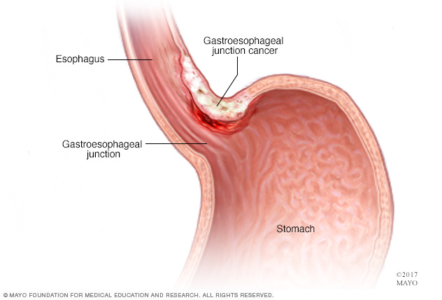 Gastroesophageal junction cancer
