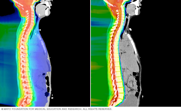 Proton beam therapy avoids unnecessary exposure to radiation compared to traditional radiation therapy.