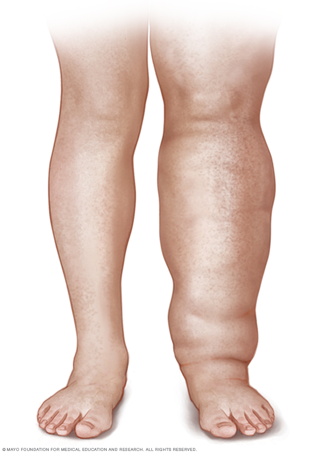 Illustration of a person with leg lymphedema