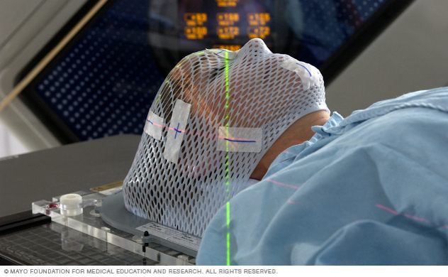 Face mask for LINAC stereotactic radiosurgery of the brain